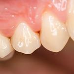 お口の中の歯周病菌を検査