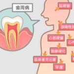 歯周病の恐ろしさとは